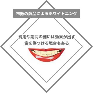市販の商品によるホワイトニング:費用や期間の割には効果が出ず、歯を傷つける場合もある